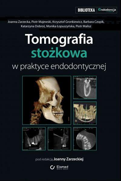 Tomografia stożkowa w praktyce endodontycznej